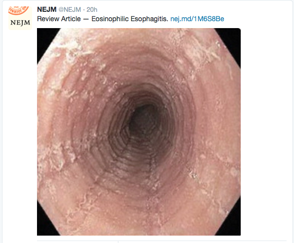 Esophagus with ringed appearance, furrowing, and loss of vascular markings