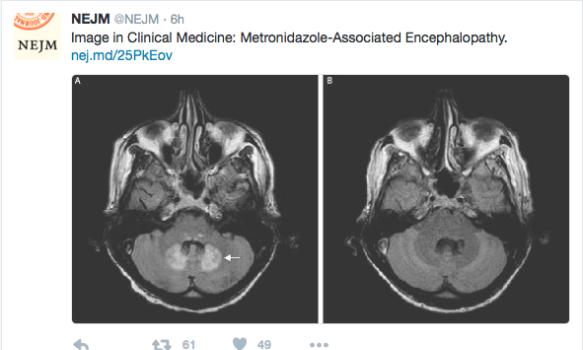 Flagyl Encephalopathy