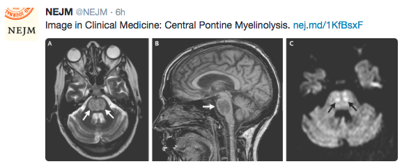 pontine myelinosis