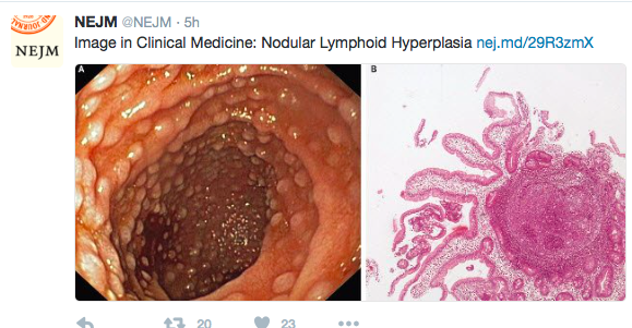 Lymphonodular Hyperplasia2