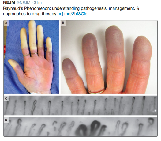 A) Pallor phase B) Cyanotic phase C) Normal nailfold capillaries (primary phenomenon) D) Abnormal nailfold capillaries typical of microvascular disease